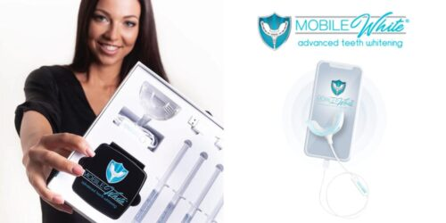 Mobile white advanced teeth whitening review
